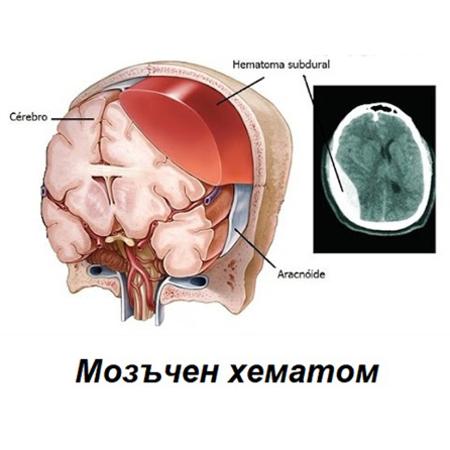 Лечение на дискова херния с озон пловдив